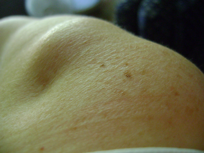 Fatty lump in arm cyst like deposit in arm pin and 2 http pic2fly
